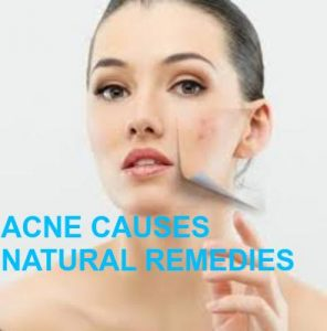 ACNE/PIMPLES CAUSES 10 BEST NATURAL REMEDIES
